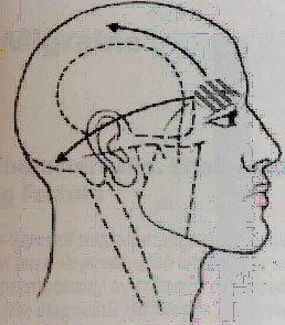 Emicrania con aura