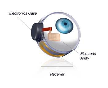 retinite