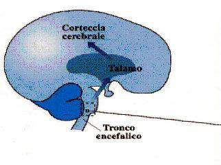Fisiopatologia del dolore emicranico