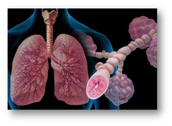 Asma e reflusso gastroesofageo