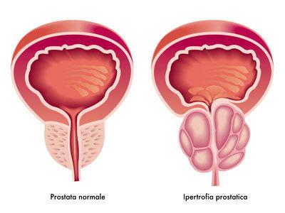 Prostata normale e ipertrofica