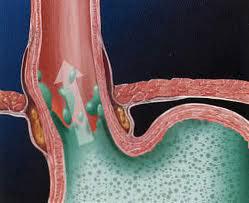 plastica antireflusso laparoscopica