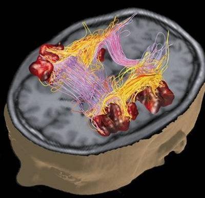 Spasticità alterazione cerebrale