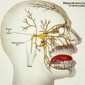 Terapia chirurgica nevralgia trigemino