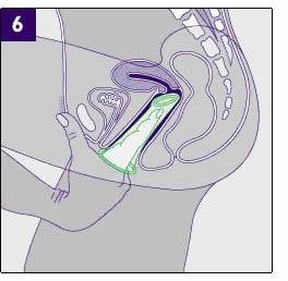 Mezzi per stanchezza di gambe di vene