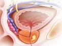 Prostata ed intestino: le relazioni pericolose
