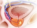 Quando la prostata aumenta di volume: l'ipertrofia prostatica benigna