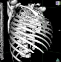 Nuova tecnica endoscopica per il trattamento dell'enfisema polmonare