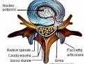 Ernia discale lombare intraforaminale. L'approccio controlaterale, nuova tecnica neurochirurgica