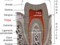 Perché i denti devitalizzati si rompono facilmente?