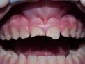 su dente