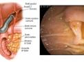 La colangiopancreatografia retrograda endoscopica (ERCP)