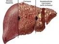 Tumore del fegato e cirrosi: il carcinoma epatocellulare, definizione, diagnosi e terapia