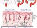 Rettocolite ulcerosa: trattamento chirurgico, proctocolectomia restaurativa, J-Pouch e Pouchite