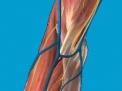 Epicondilite e sindrome del tunnel radiale
