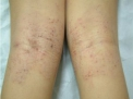 La Dermatite Atopica: realtà e finzione di una malattia in costante aumento