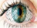 occhio-rosso