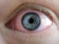 lesione-oculare