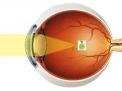 Che cos'è la miopia?