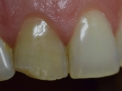Gli incidenti stradali sono spesso causa di traumi dentali e danni alle protesi. Come fare per cura