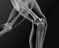 Obesità, artrosi e chirurgia protesica