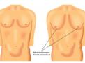 La mammella maschile (ginecomastia, carcinoma e patologia mammaria)