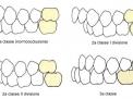 Vertigini, (dise)equilibrio, postura e malocclusione dentale