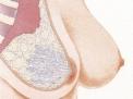 Chirurgia della mammella: quadrantectomia e rimodellamento ghiandolare