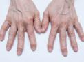 condroprotezione-terapia-infiltrativa-nel-dolore-a