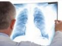 asma,respiro,inalatore,spirometria