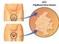 hpv,papilloma,hiv,aids,vaccino,test,contagio,ginecologo,condilomi,biopsia,colposcopia,anale,cancro,infezione,utero