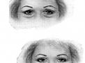 La chirurgia estetica delle palpebre: blefaroplastica superiore ed inferiore