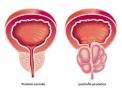 Ipertrofia prostatica e tumore prostatico: che differenza c'è?