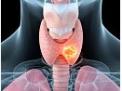 MIVAT: una nuova tecnica chirurgica per la tiroide