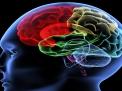 Aneurismi cerebrali non rotti